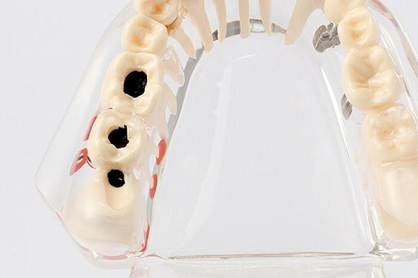 虫歯や歯周病の原因