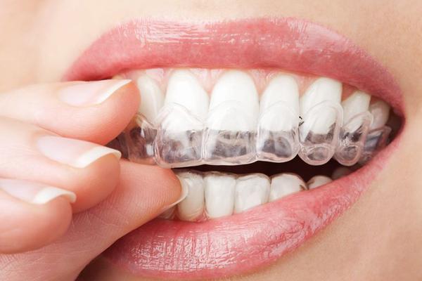を する 歯 白く
